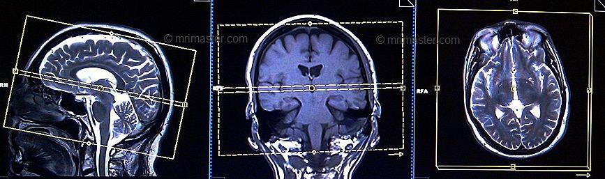ax t2 1 - در چه مواقعی MRI سر انجام می شود؟
